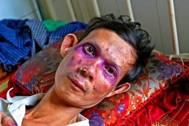 Медицина тарыхында ВИЧ-инфекциялуу экинчи адам бул оорудан айыгышы мүмкүн