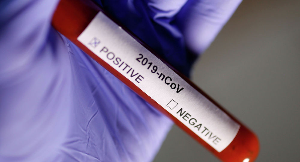 Бүгүн өлкө аймагында 43 кишиден коронавирус чыкты. Акыркы маалымат